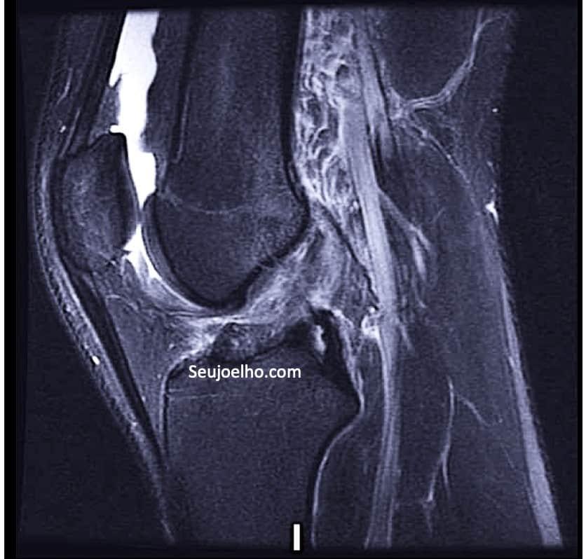 Ressonancia magnetica mostrando ligamento cruzado anterior do joelho reconstruido de maneira anatomica